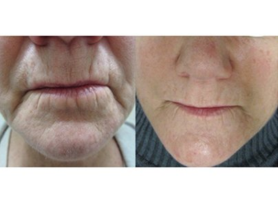 Pro-cell-microneedling-stem-cell-before-after-01