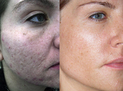 Pro-cell-microneedling-stem-cell-before-after-02