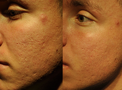 Pro-cell-microneedling-stem-cell-before-after-03