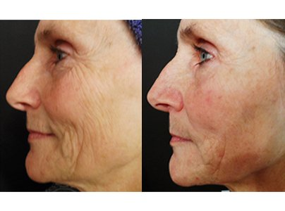 Pro-cell-microneedling-stem-cell-before-after-04