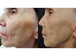 This is a 74 year old woman that had a series of four treatments.