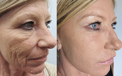 Acuity Microneedling before after